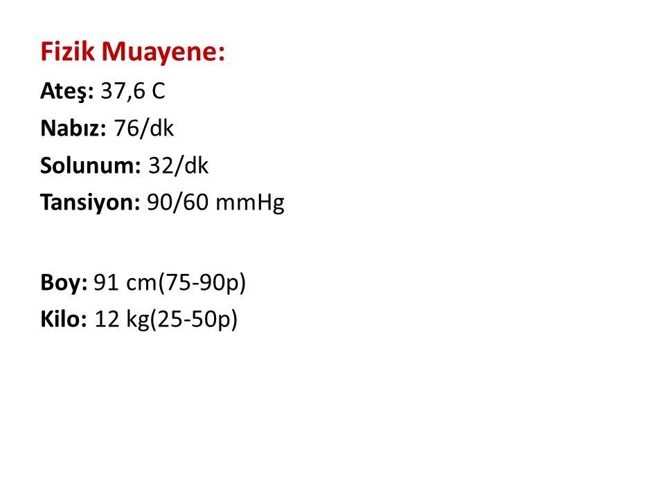 Fizik Muayene: Ateş: 37,6 C Nabız: 76/dk Solunum: 32/dk Tansiyon: 90/60 mmHg Boy: 91 cm(75-90p) Kilo: 12 kg(25-50p)