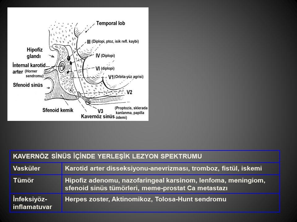 KAVERNÖZ SİNÜS İÇİNDE YERLEŞİK LEZYON SPEKTRUMU VaskülerKarotid arter disseksiyonu-anevrizması, tromboz, fistül, iskemi TümörHipofiz adenomu, nazofari