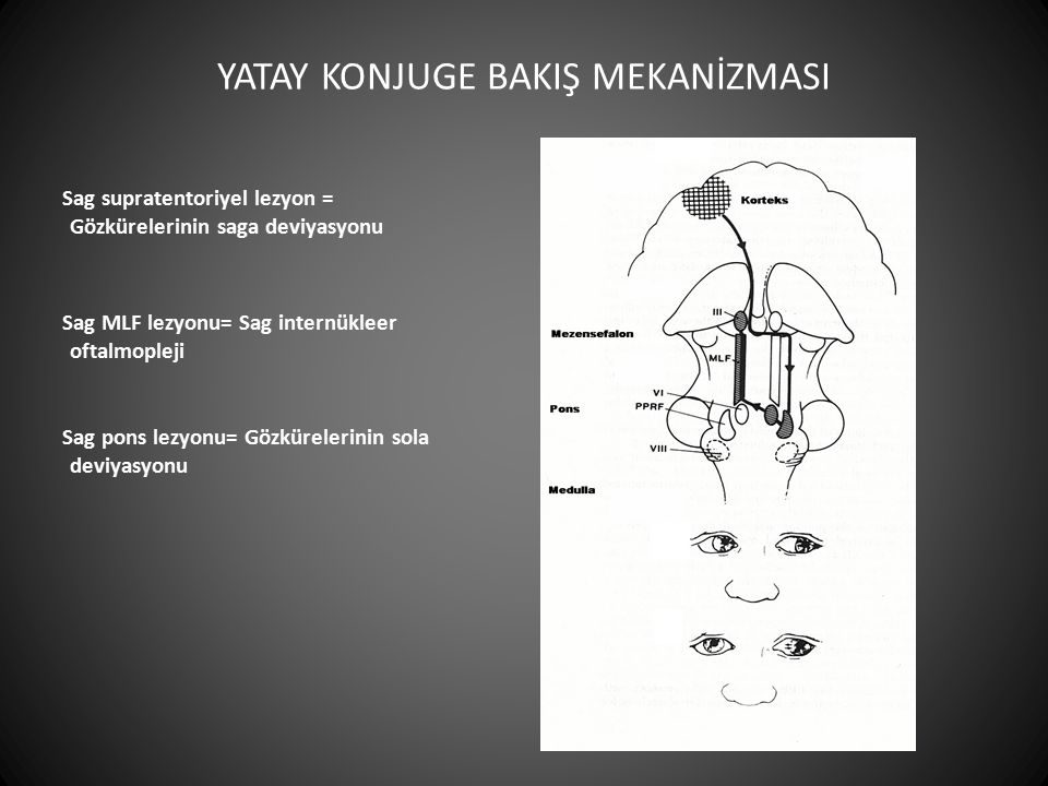 Sag supratentoriyel lezyon = Gözkürelerinin saga deviyasyonu Sag pons lezyonu= Gözkürelerinin sola deviyasyonu Sag MLF lezyonu= Sag internükleer oftal