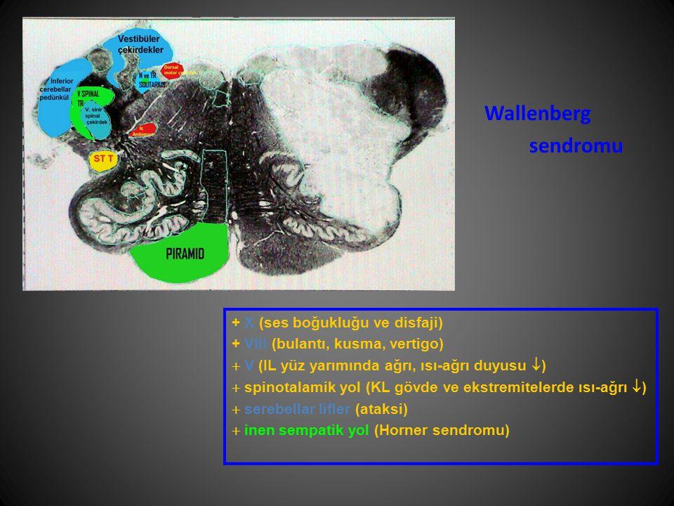 + X (ses boğukluğu ve disfaji) + VIII (bulantı, kusma, vertigo)  V (IL yüz yarımında ağrı, ısı-ağrı duyusu  )  spinotalamik yol (KL gövde ve ekstre