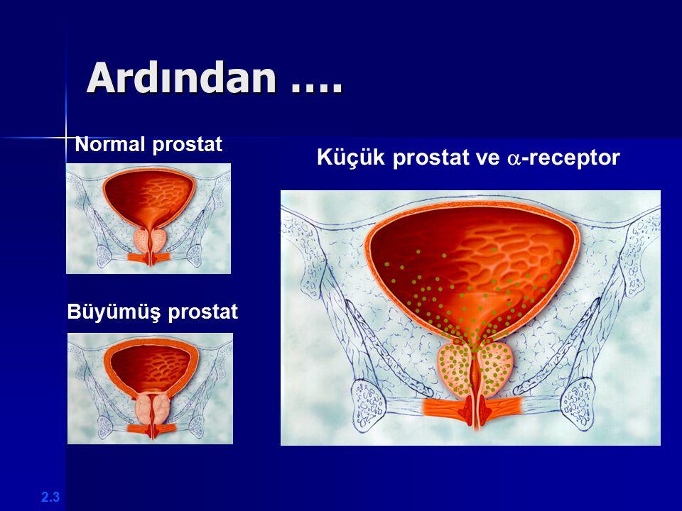 Ardından …. Normal prostat Büyümüş prostat Küçük prostat ve  -receptor 2.3