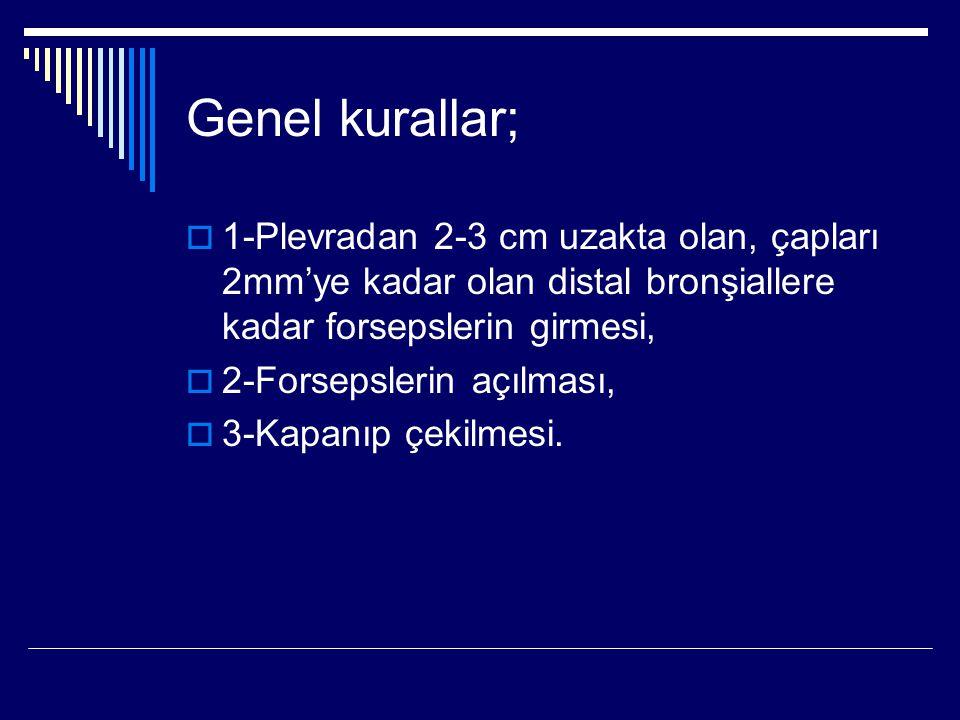 Genel kurallar;  1-Plevradan 2-3 cm uzakta olan, çapları 2mm'ye kadar olan distal bronşiallere kadar forsepslerin girmesi,  2-Forsepslerin açılması,