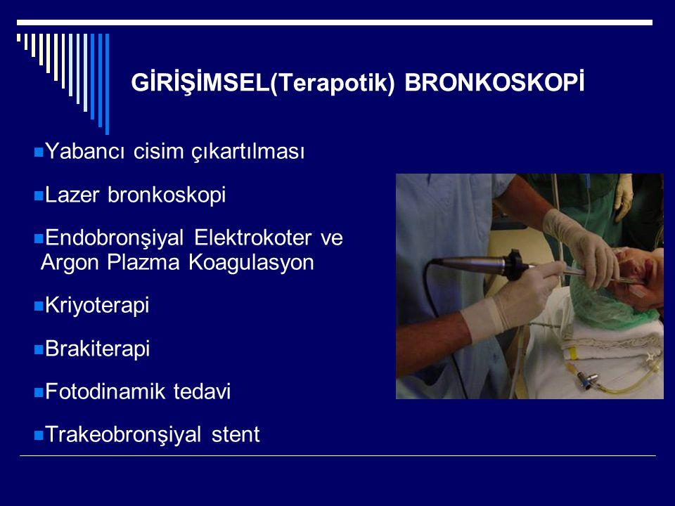 GİRİŞİMSEL(Terapotik) BRONKOSKOPİ Yabancı cisim çıkartılması Lazer bronkoskopi Endobronşiyal Elektrokoter ve Argon Plazma Koagulasyon Kriyoterapi Brak