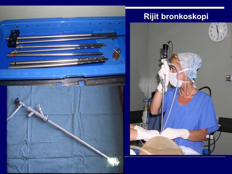 Bronkoskopi endikasyonları:  III.Tedavi amaçlı/girişimsel Yabancı cisim çıkarılması Endobronşiyal lazer, kriyo, argon ve elektrokoter tedavisi Brakiterapi Endobronşiyal stent uygulaması  IV.