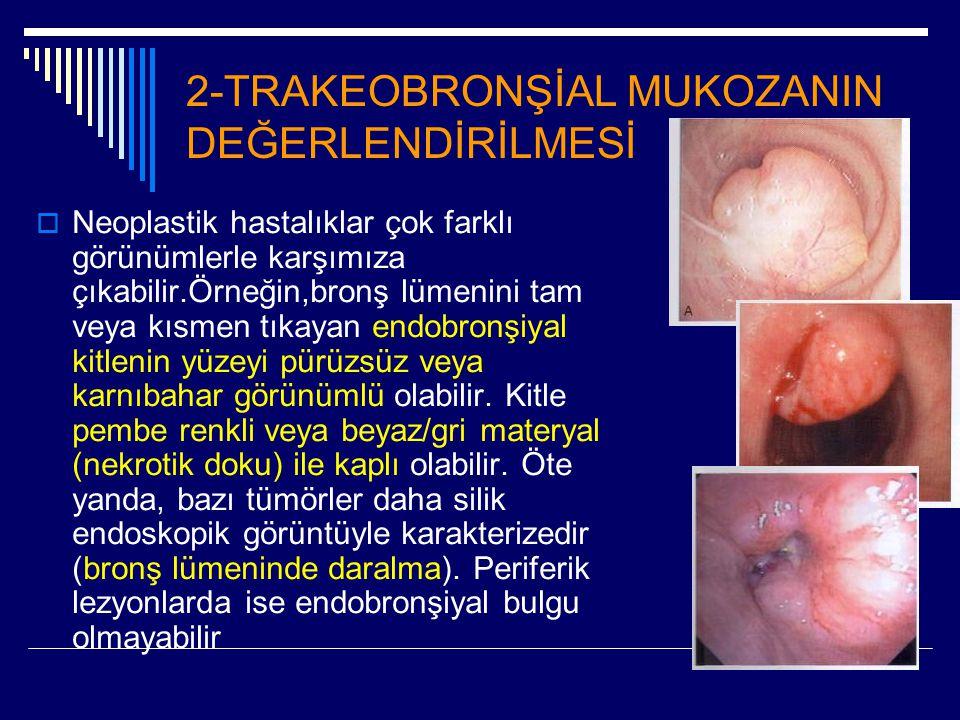 2-TRAKEOBRONŞİAL MUKOZANIN DEĞERLENDİRİLMESİ  Neoplastik hastalıklar çok farklı görünümlerle karşımıza çıkabilir.Örneğin,bronş lümenini tam veya kısm