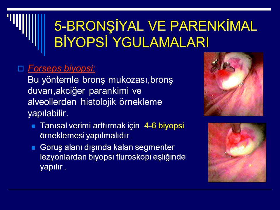 5-BRONŞİYAL VE PARENKİMAL BİYOPSİ YGULAMALARI  Forseps biyopsi: Bu yöntemle bronş mukozası,bronş duvarı,akciğer parankimi ve alveollerden histolojik