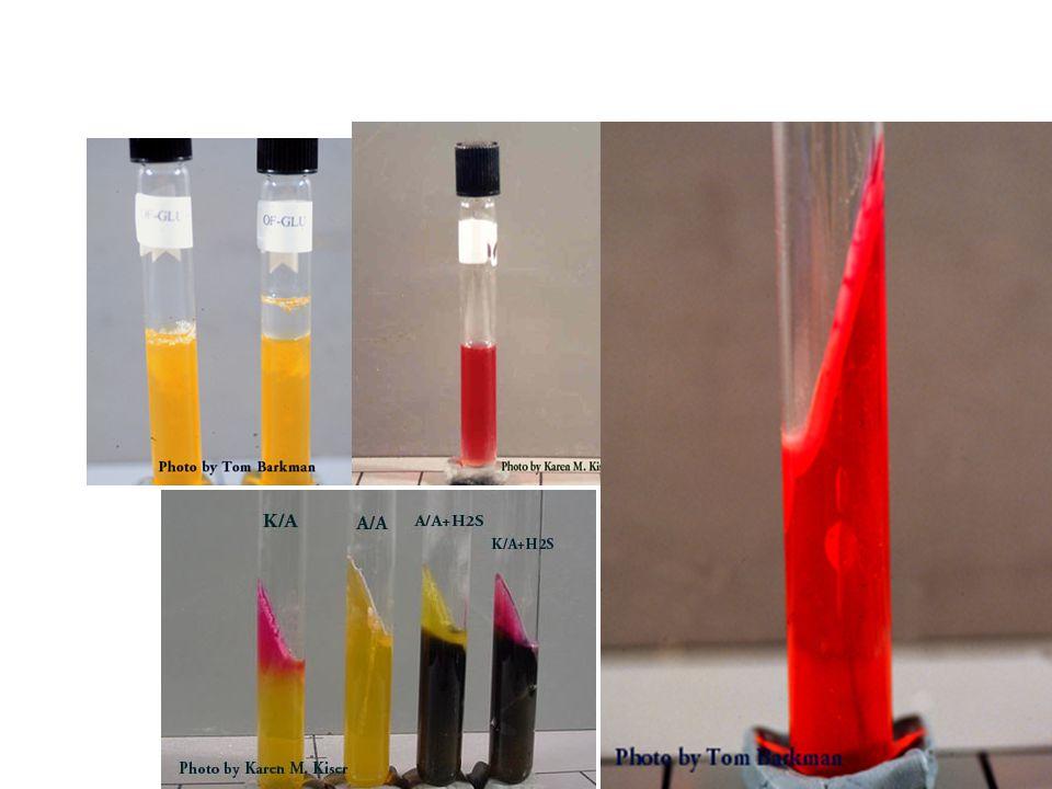 P.aeruginosa P.aeruginosa çevre koşullarına en fazla uyum sağlayan vejetatif bakteridir.P.