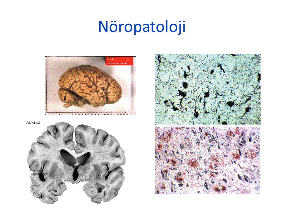 Nöropatoloji