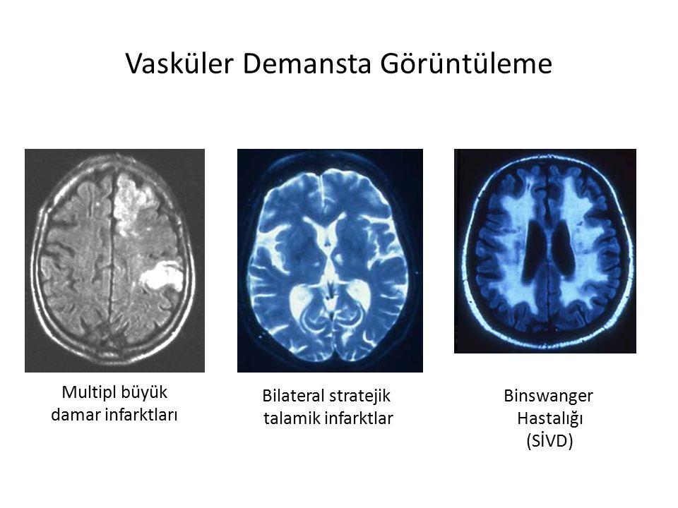 Vasküler Demansta Görüntüleme Multipl büyük damar infarktları Bilateral stratejik talamik infarktlar Binswanger Hastalığı (SİVD)