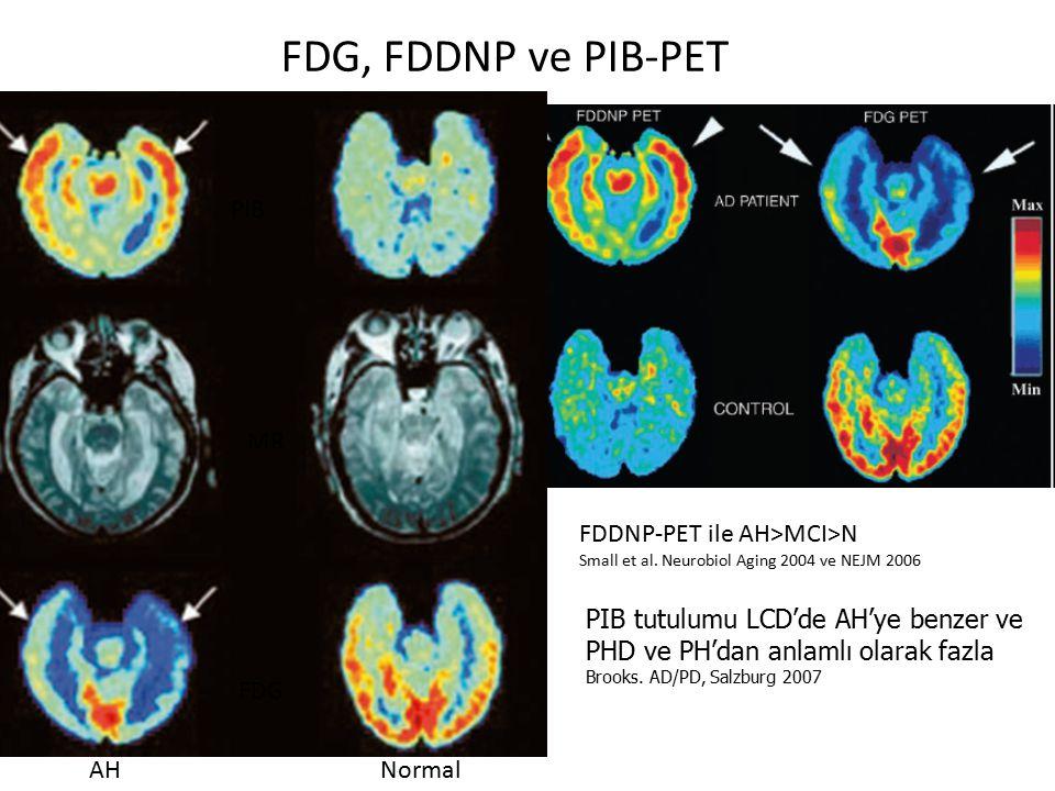 FDG, FDDNP ve PIB-PET FDDNP-PET ile AH>MCI>N Small et al. Neurobiol Aging 2004 ve NEJM 2006 AH FDG PIB MR Normal PIB tutulumu LCD'de AH'ye benzer ve P