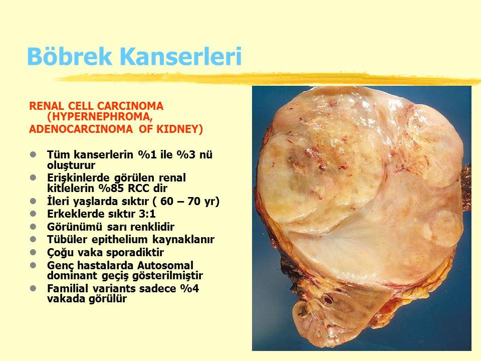 Böbrek Kanserleri RENAL CELL CARCINOMA (HYPERNEPHROMA, ADENOCARCINOMA OF KIDNEY) lTüm kanserlerin %1 ile %3 nü oluşturur lErişkinlerde görülen renal k