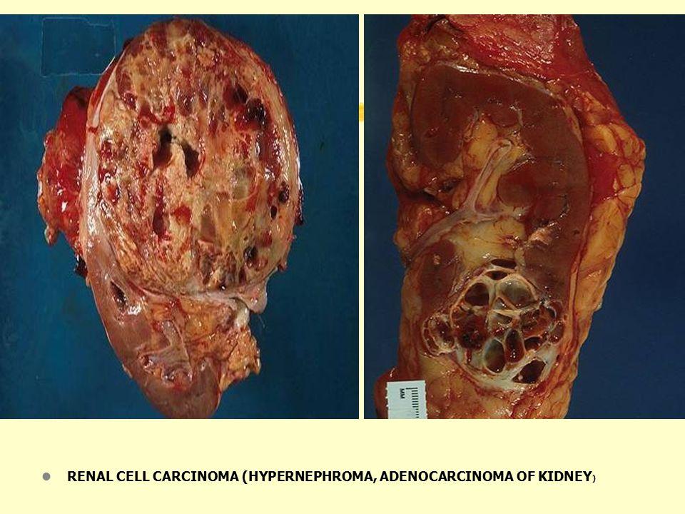 l RENAL CELL CARCINOMA (HYPERNEPHROMA, ADENOCARCINOMA OF KIDNEY )
