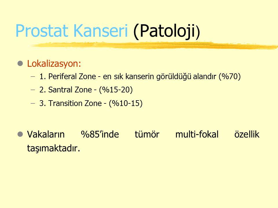 Prostat Kanseri (Patoloji ) lLokalizasyon: –1. Periferal Zone - en sık kanserin görüldüğü alandır (%70) –2. Santral Zone - (%15-20) –3. Transition Zon
