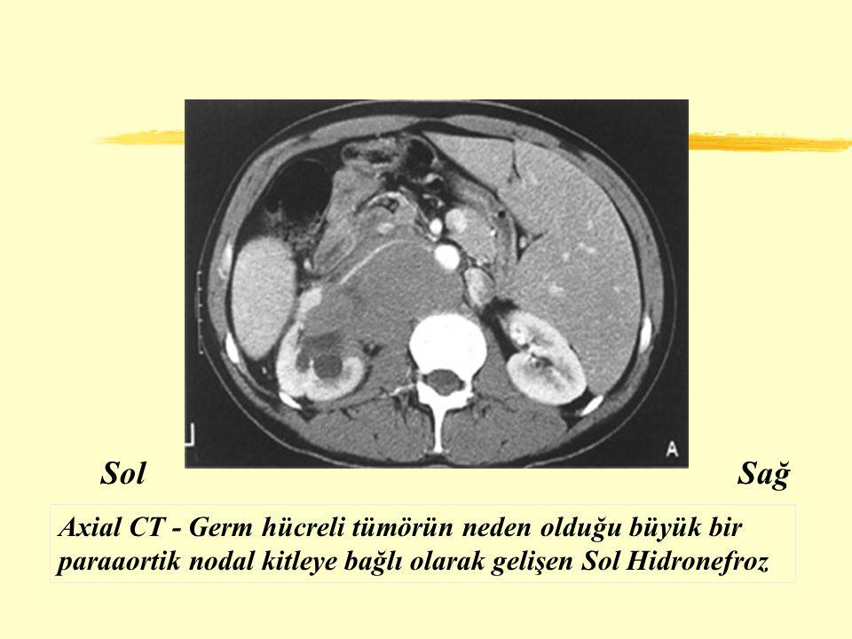 SolSağ Axial CT - Germ hücreli tümörün neden olduğu büyük bir paraaortik nodal kitleye bağlı olarak gelişen Sol Hidronefroz