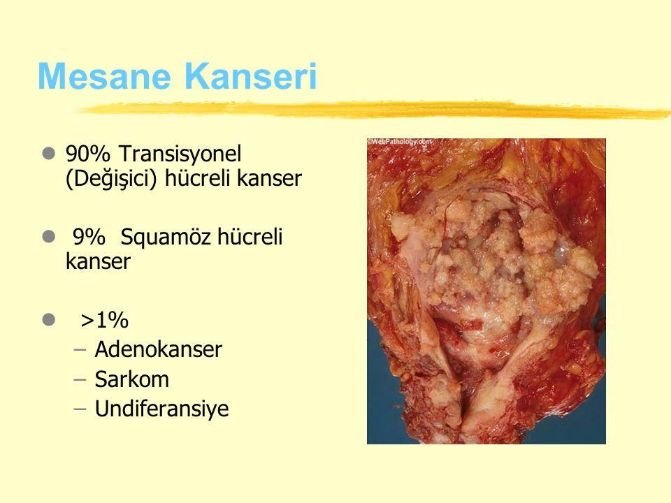 Mesane Kanseri l90% Transisyonel (Değişici) hücreli kanser l 9% Squamöz hücreli kanser l >1% –Adenokanser –Sarkom –Undiferansiye