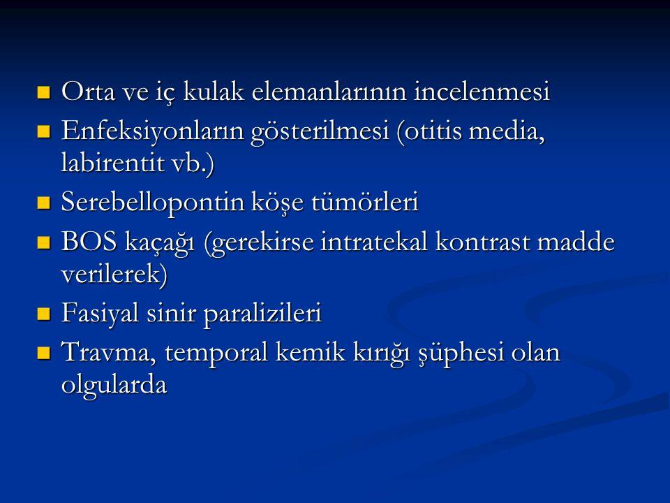 Orta ve iç kulak elemanlarının incelenmesi Orta ve iç kulak elemanlarının incelenmesi Enfeksiyonların gösterilmesi (otitis media, labirentit vb.) Enfe