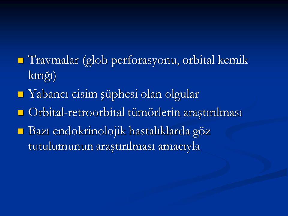 Travmalar (glob perforasyonu, orbital kemik kırığı) Travmalar (glob perforasyonu, orbital kemik kırığı) Yabancı cisim şüphesi olan olgular Yabancı cis