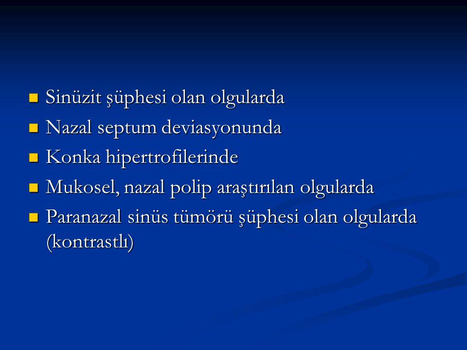 Sinüzit şüphesi olan olgularda Sinüzit şüphesi olan olgularda Nazal septum deviasyonunda Nazal septum deviasyonunda Konka hipertrofilerinde Konka hipe