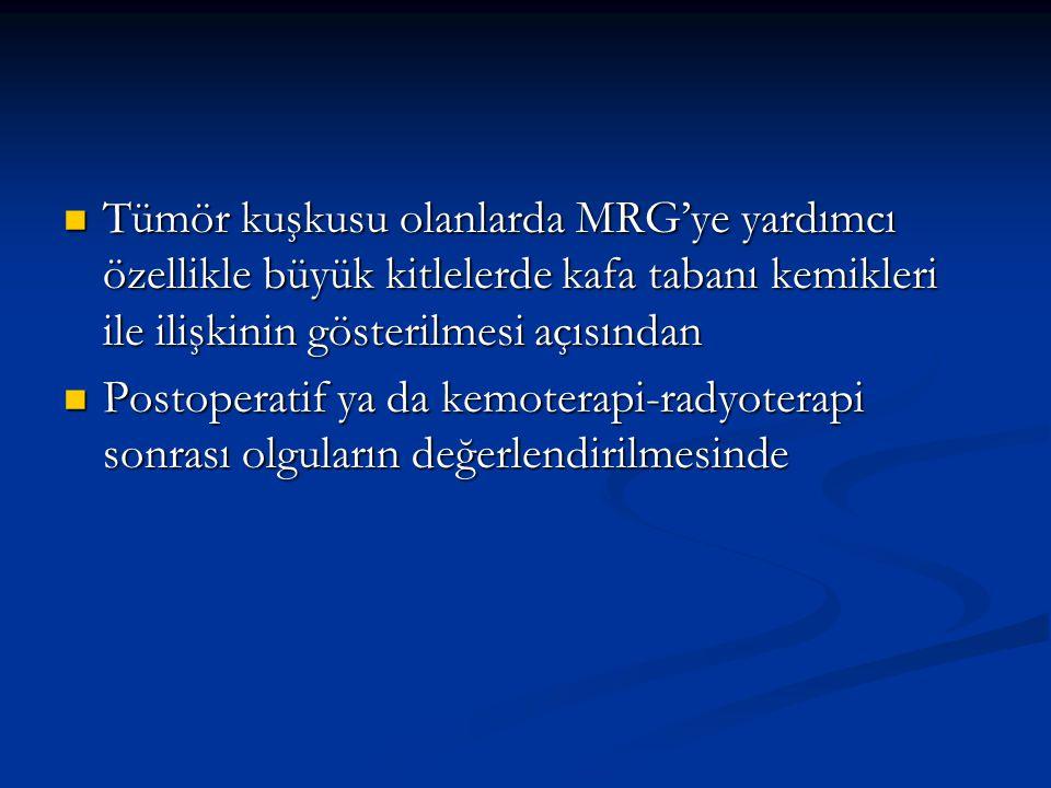 Tümör kuşkusu olanlarda MRG'ye yardımcı özellikle büyük kitlelerde kafa tabanı kemikleri ile ilişkinin gösterilmesi açısından Tümör kuşkusu olanlarda