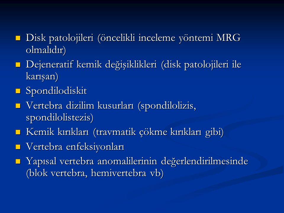 Disk patolojileri (öncelikli inceleme yöntemi MRG olmalıdır) Disk patolojileri (öncelikli inceleme yöntemi MRG olmalıdır) Dejeneratif kemik değişiklik