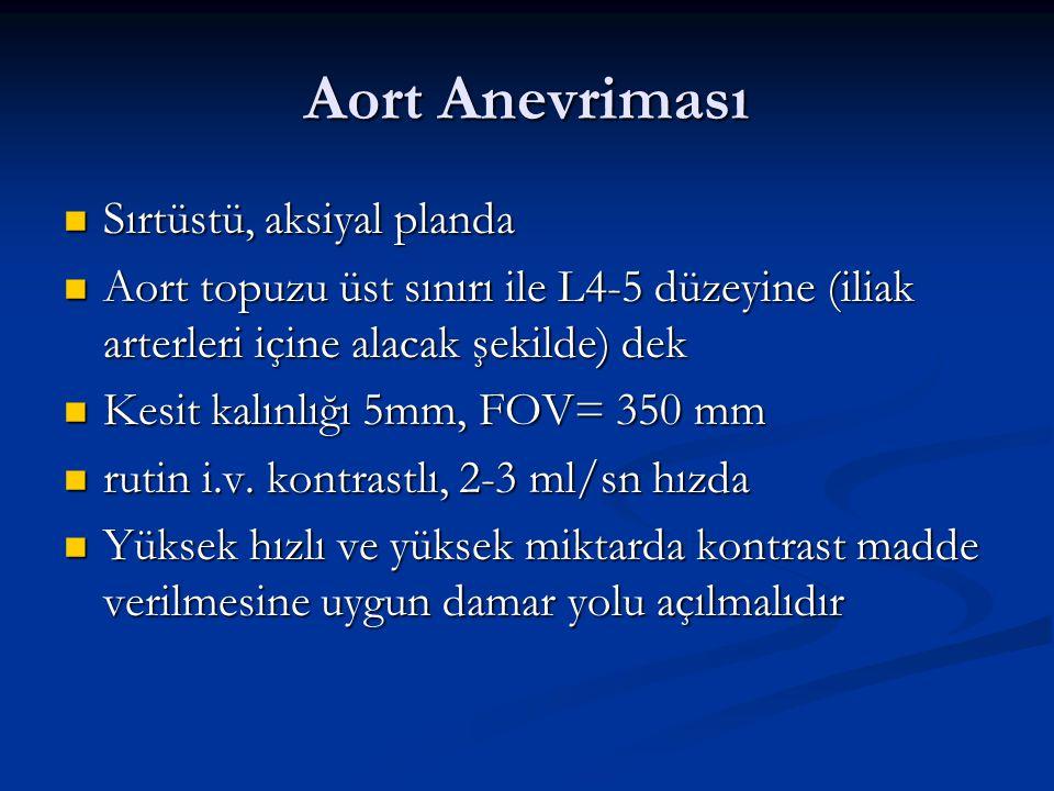 Aort Anevriması Sırtüstü, aksiyal planda Sırtüstü, aksiyal planda Aort topuzu üst sınırı ile L4-5 düzeyine (iliak arterleri içine alacak şekilde) dek