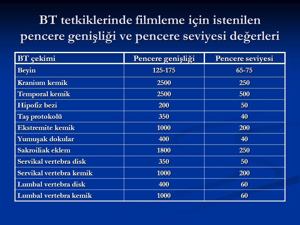 BT tetkiklerinde filmleme için istenilen pencere genişliği ve pencere seviyesi değerleri BT çekimi Pencere genişliği Pencere seviyesi Beyin125-17565-7