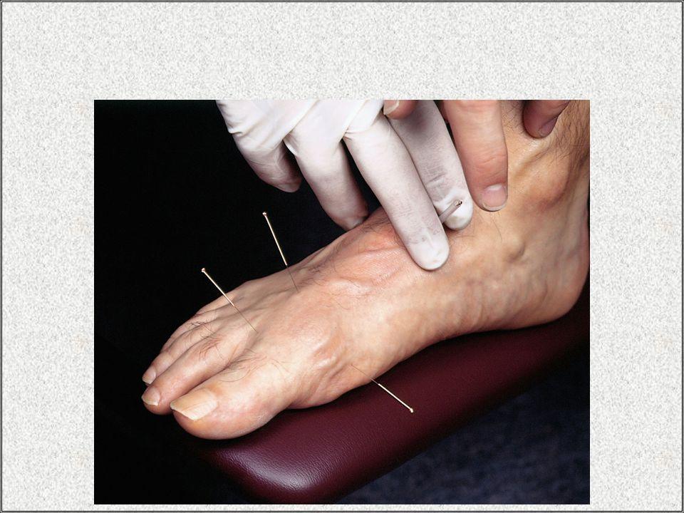 Kulak akupunkturu