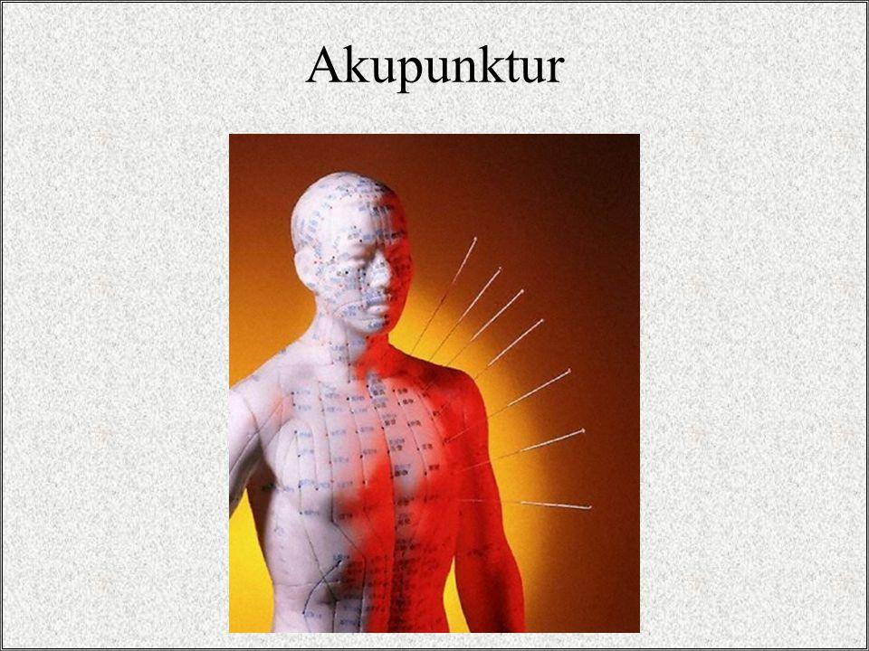 Acus = İğne Punctus = Batırmak Qi (chee) = yaşam enerjisi Cun = ölçü birimi Meridyenler Yin / Yang dengesi Akupunktur