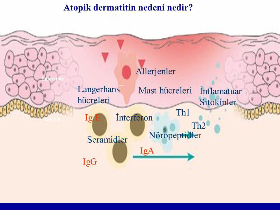 Dermis Epidermis Langerhans hücreleri Th1 Th2 İnflamatuar Sitokinler Mast hücreleri Allerjenler İnterferon Nöropeptidler Seramidler Ig E IgG IgA Atopi