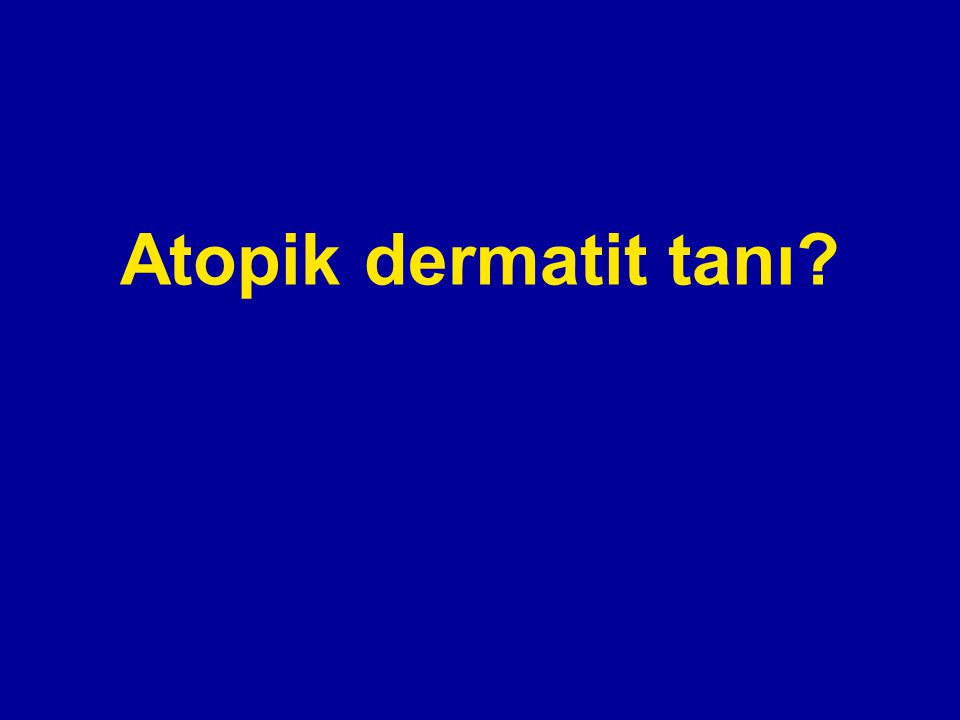 Atopik dermatit tanı?
