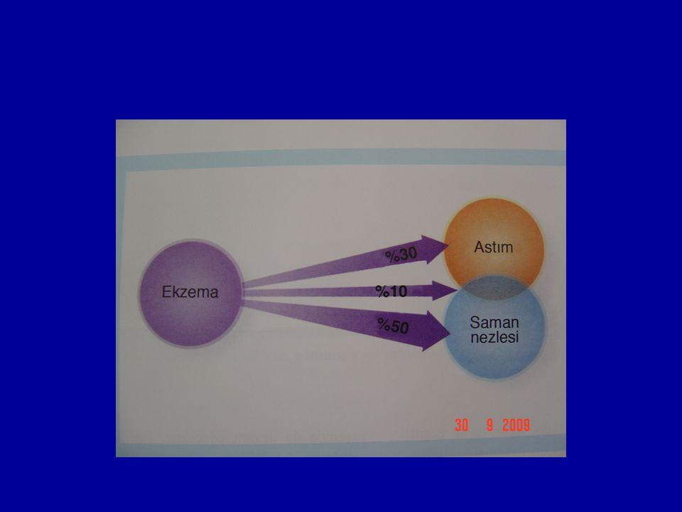 Tedavi yaklaşımı Eğitim, tetikleyici faktörlerden uzaklaşma Derinin nemlendirilmesi Antihistaminik Topikal tedaviler Kortikosteroid kullanımı Takrolimus, Pimekrolimus Sistemik tedavi Fototerapi