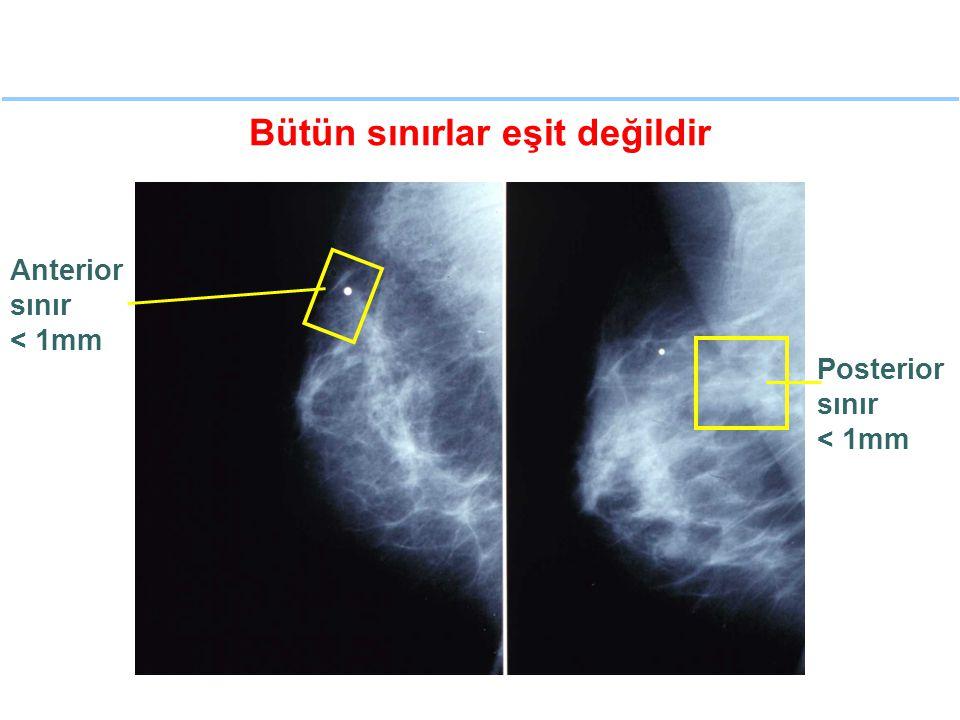 Bütün sınırlar eşit değildir Anterior sınır < 1mm Posterior sınır < 1mm