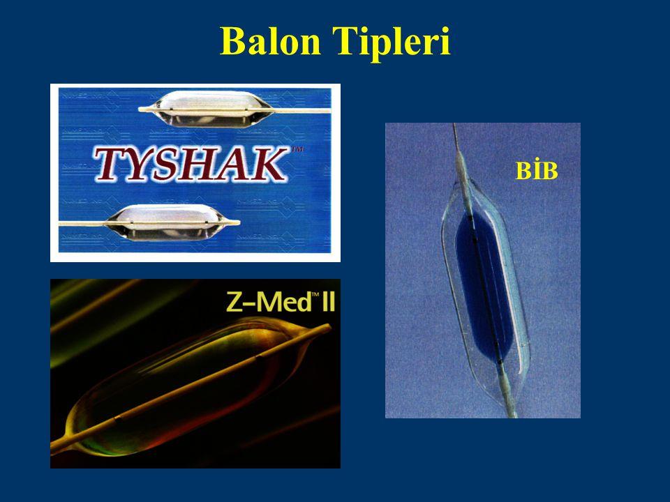 Balon Tipleri BİB