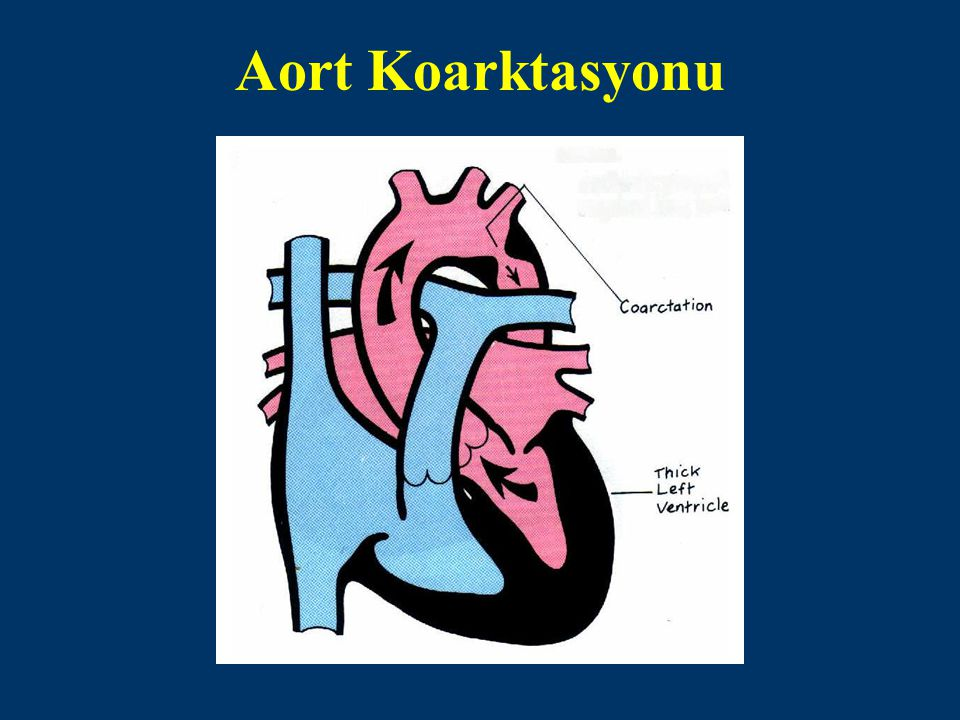 Tarihçe İlk kez 1982'de aort koarktasyonunda balon anjiyoplasti uygulaması yapılmıştır.