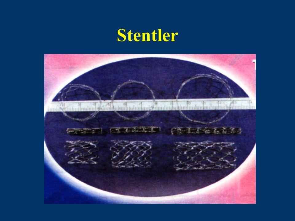 Stentler