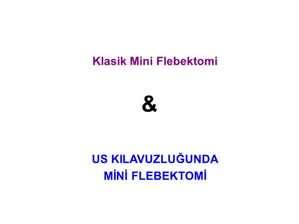 Klasik Mini Flebektomi & US KILAVUZLUĞUNDA MİNİ FLEBEKTOMİ