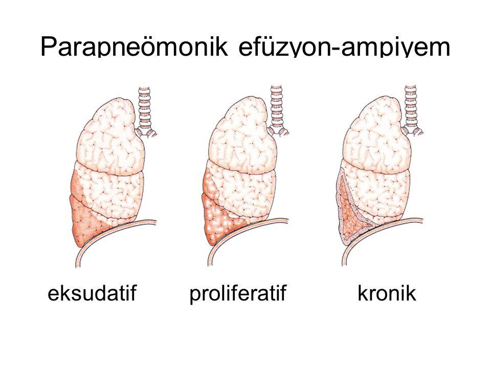 Parapneömonik efüzyon-ampiyem eksudatif proliferatif kronik