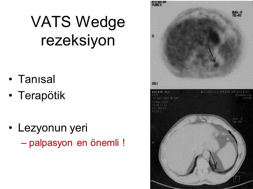 VATS Wedge rezeksiyon Tanısal Terapötik Lezyonun yeri –palpasyon en önemli !