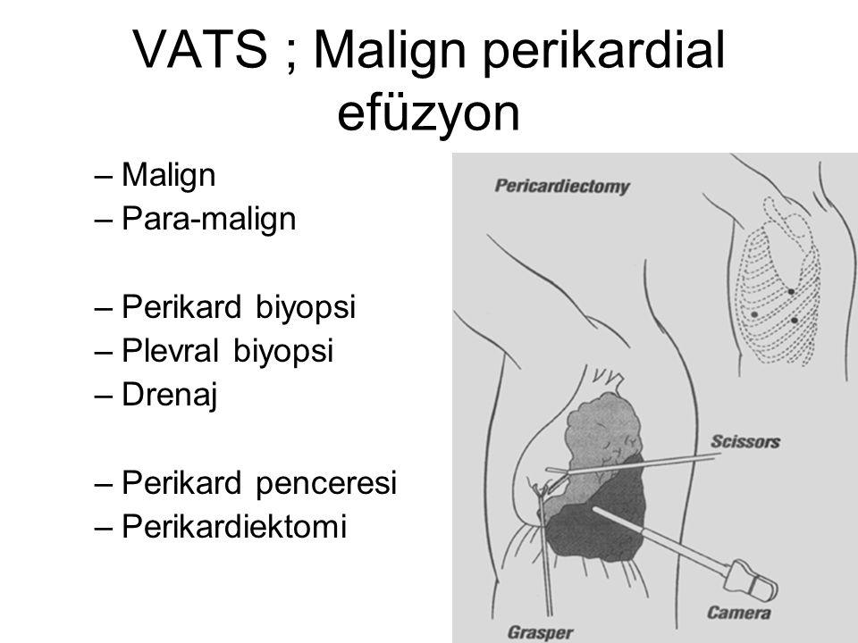 VATS ; Malign perikardial efüzyon –Malign –Para-malign –Perikard biyopsi –Plevral biyopsi –Drenaj –Perikard penceresi –Perikardiektomi