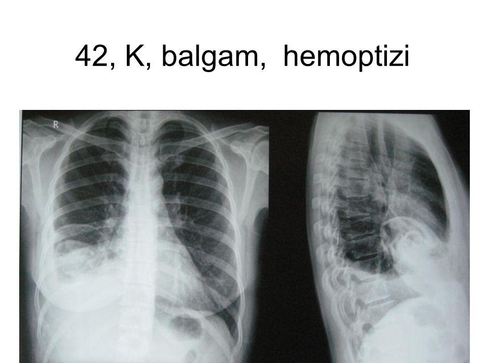 42, K, balgam, hemoptizi