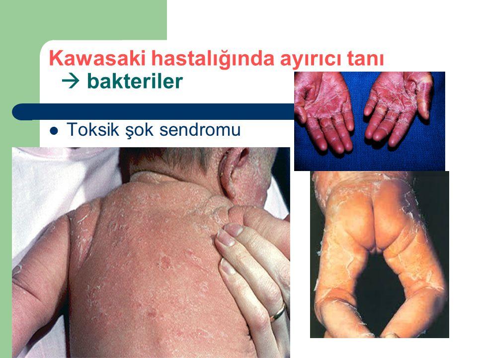 Kawasaki hastalığında ayırıcı tanı  bakteriler Toksik şok sendromu