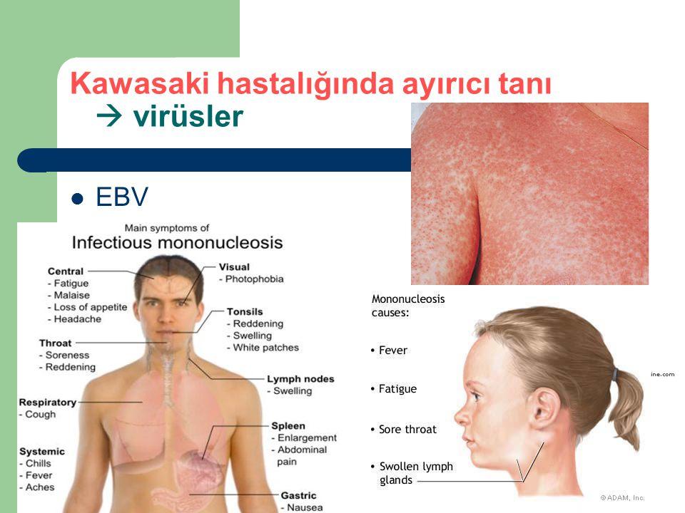 Kawasaki hastalığında ayırıcı tanı  virüsler EBV