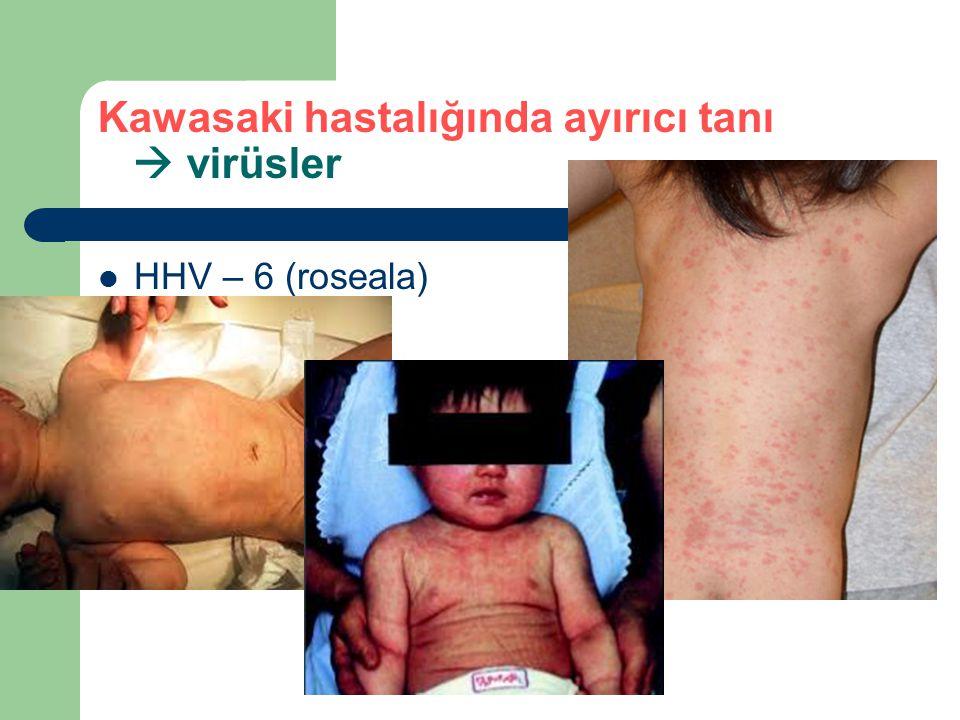 Kawasaki hastalığında ayırıcı tanı  virüsler HHV – 6 (roseala)