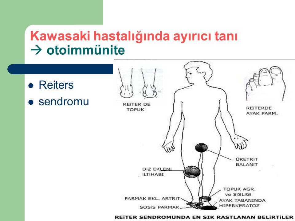 Kawasaki hastalığında ayırıcı tanı  otoimmünite Reiters sendromu