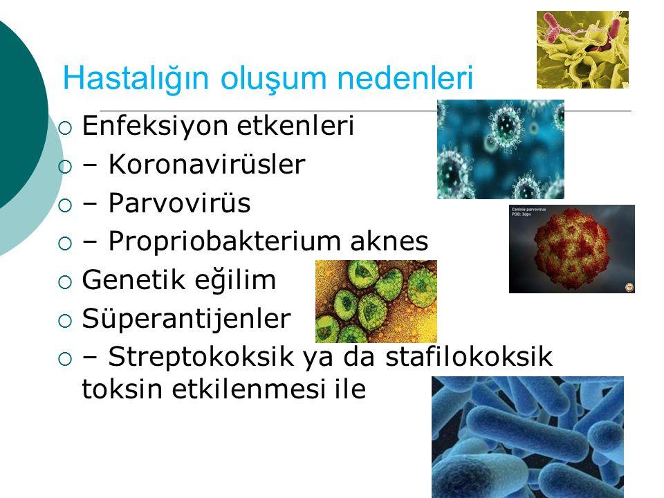 Hastalığın oluşum nedenleri  Enfeksiyon etkenleri  – Koronavirüsler  – Parvovirüs  – Propriobakterium aknes  Genetik eğilim  Süperantijenler  – Streptokoksik ya da stafilokoksik toksin etkilenmesi ile