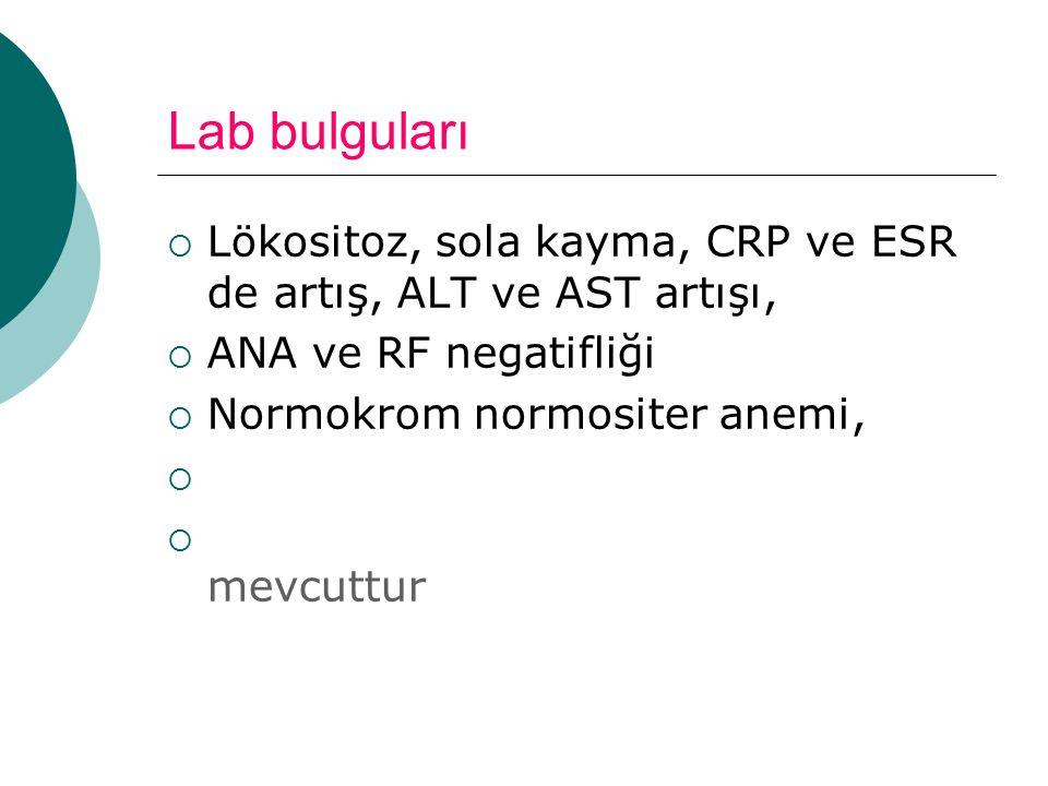 Lab bulguları  Lökositoz, sola kayma, CRP ve ESR de artış, ALT ve AST artışı,  ANA ve RF negatifliği  Normokrom normositer anemi,   mevcuttur