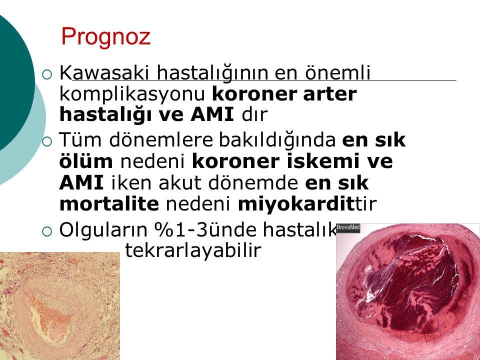 Prognoz  Kawasaki hastalığının en önemli komplikasyonu koroner arter hastalığı ve AMI dır  Tüm dönemlere bakıldığında en sık ölüm nedeni koroner iskemi ve AMI iken akut dönemde en sık mortalite nedeni miyokardittir  Olguların %1-3ünde hastalık ……..