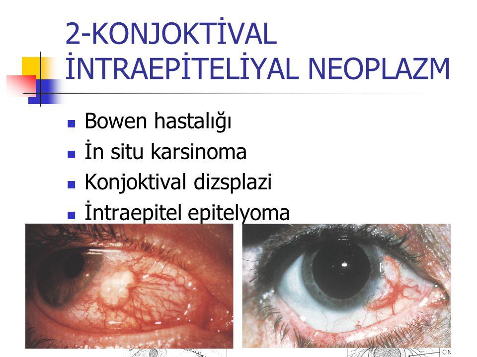 2-KONJOKTİVAL İNTRAEPİTELİYAL NEOPLAZM Bowen hastalığı İn situ karsinoma Konjoktival dizsplazi İntraepitel epitelyoma