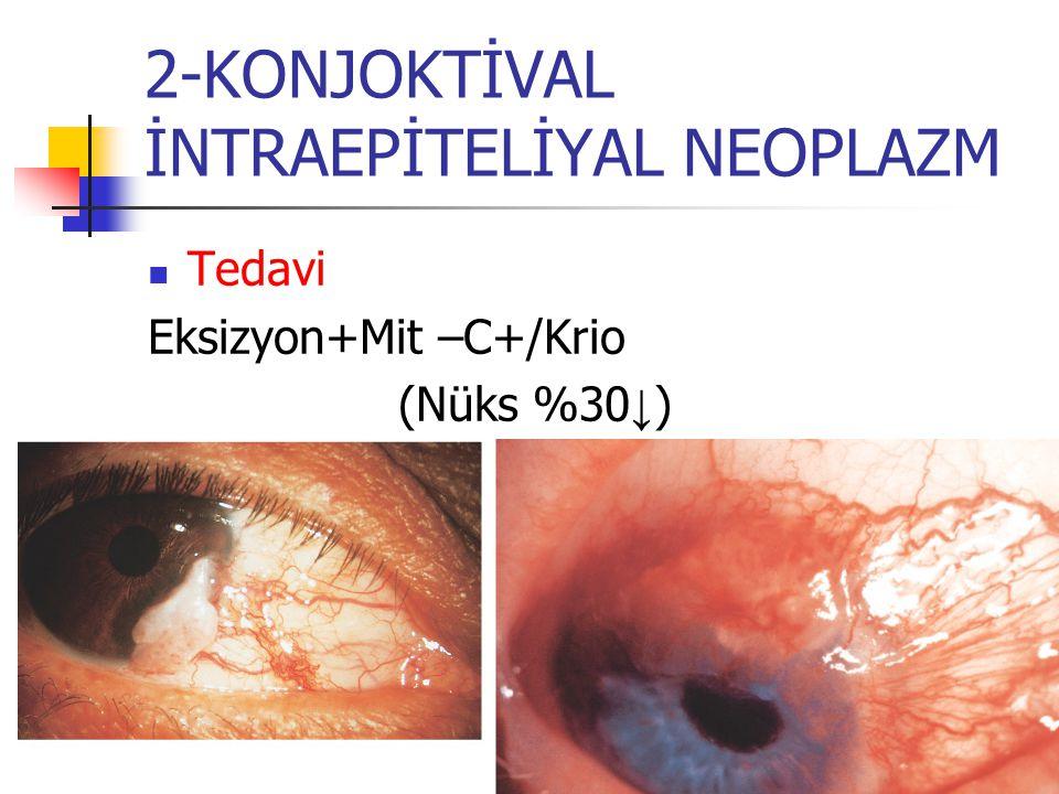 2-KONJOKTİVAL İNTRAEPİTELİYAL NEOPLAZM Tedavi Eksizyon+Mit –C+/Krio (Nüks %30 ↓ )