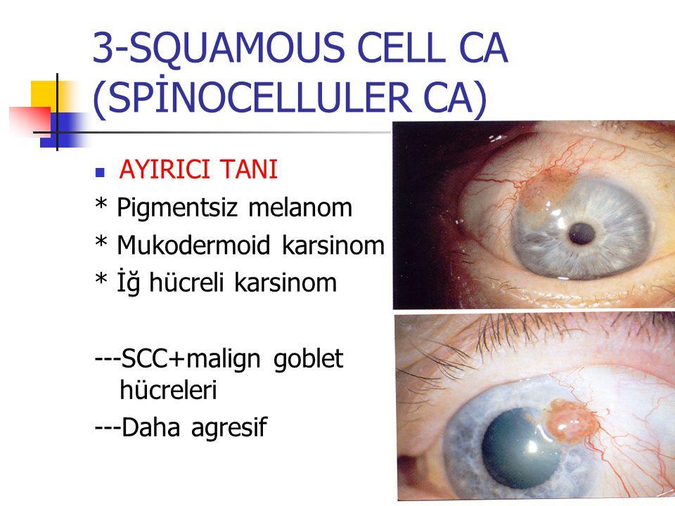 3-SQUAMOUS CELL CA (SPİNOCELLULER CA) AYIRICI TANI * Pigmentsiz melanom * Mukodermoid karsinom * İğ hücreli karsinom ---SCC+malign goblet hücreleri --